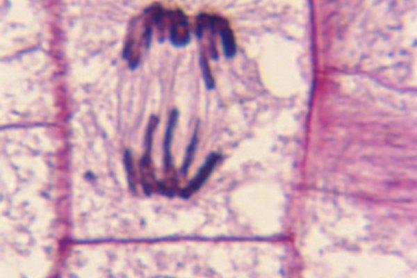 Las células vegetales tienen cromosomas.