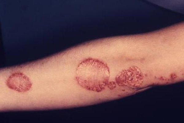 Odos grybelis ant ranku