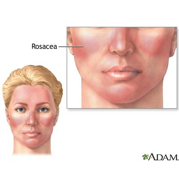 An early sign of rosacea is redness on the cheek area