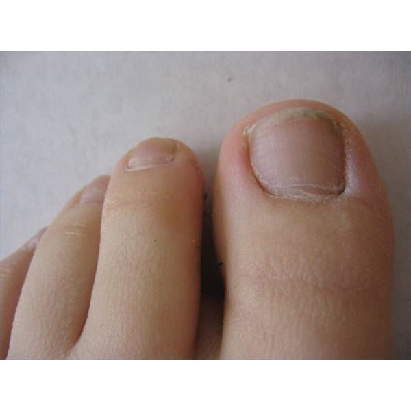 How to Treat Toenail Infection With Apple Cider Vinegar | Healthfully