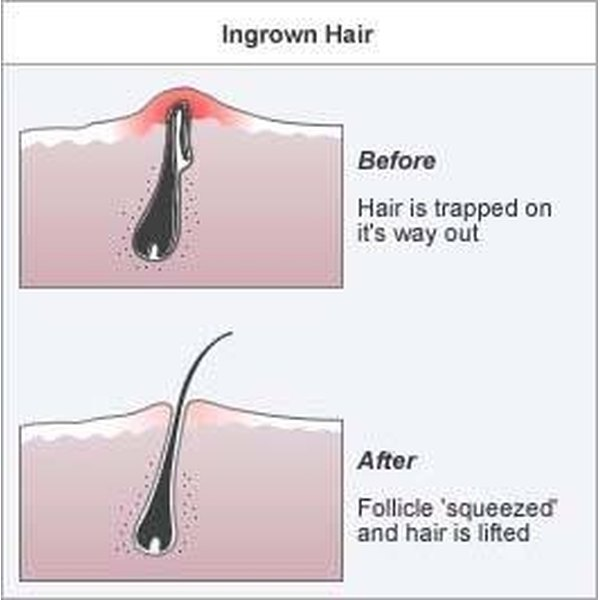 Get Rid of an Infected Ingrown Hair