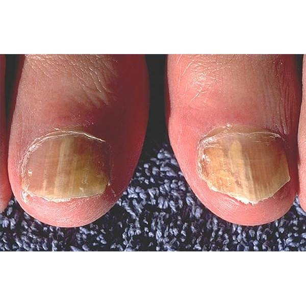 How to Use Bleach for Curing Toenail Fungus | Healthfully