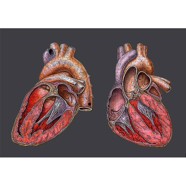 What is Mild Cardiomegaly?