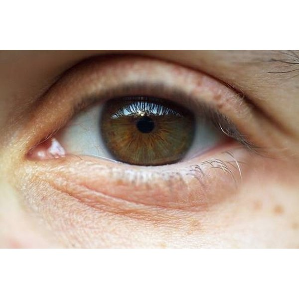 What Are the Causes of Eyelid Discoloration?