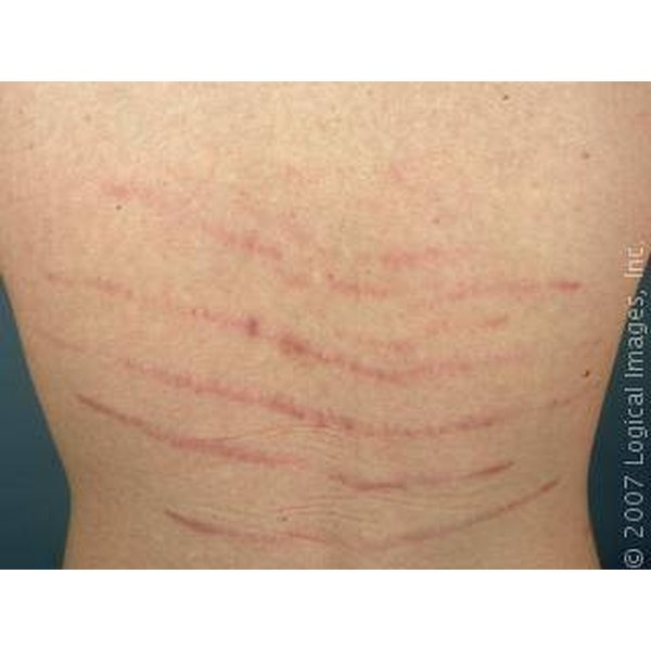 What Causes Stretch Marks On the Lower Back?