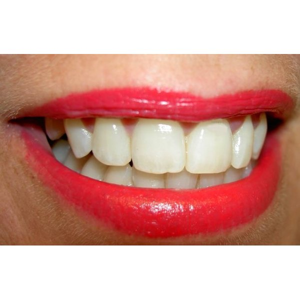 You can whiten your teeth at home in two weeks.