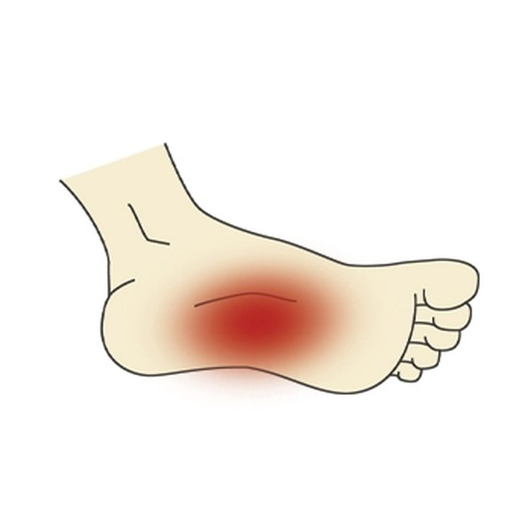 Exercise & Foot Arch Pain