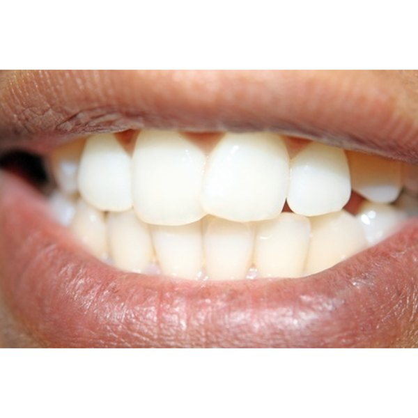 Black spots on your gums can be harmless or potentially fatal.