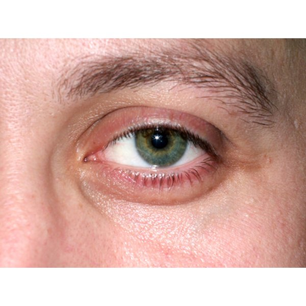 Allergies are a common cause of red puffy eyes.