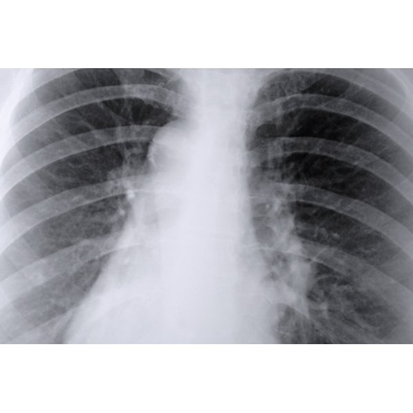 Lung damage may result from cadmium exposure.