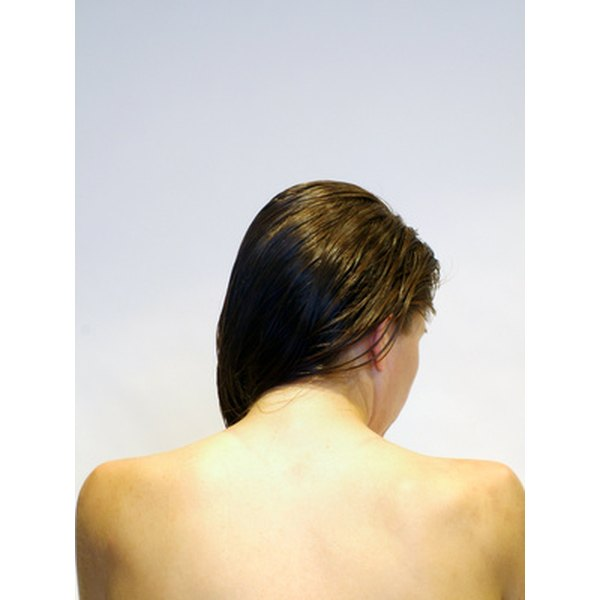 Back acne may be improved with clinical microdermabrasion treatments.