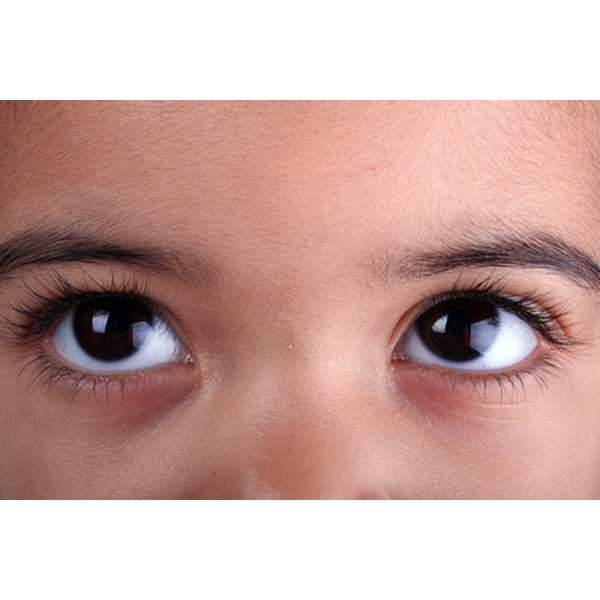 Hand washing can reduce your toddler's risk of pinkeye.