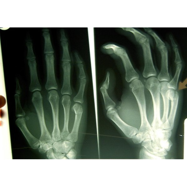 Elevated levels of calcium phosphate can cause bone disease and bone loss in the hands.
