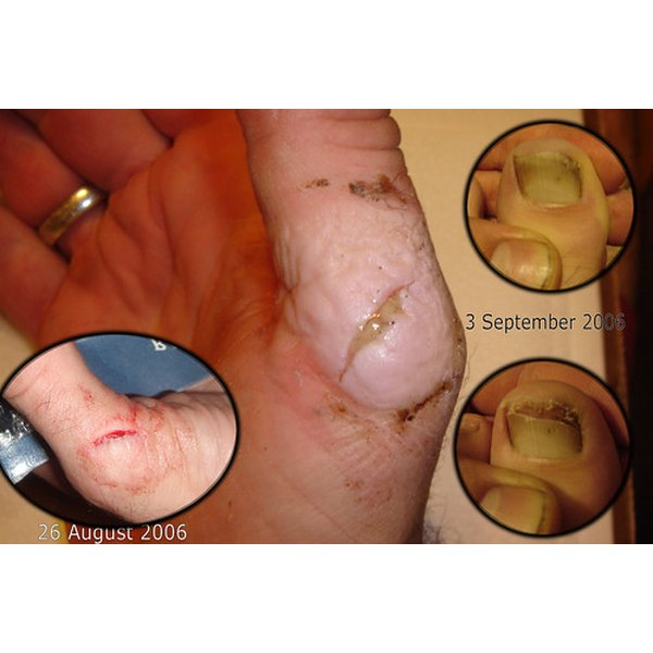 Ringworm life cycle healthfully a ringworm infection cn look like this ccuart Image collections