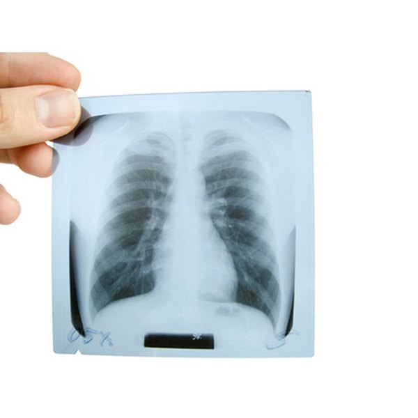 Normal lungs on chest x-ray