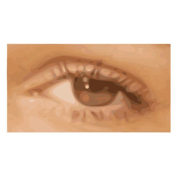 Fine wrinkles under the eyes can be treated with prescription creams.