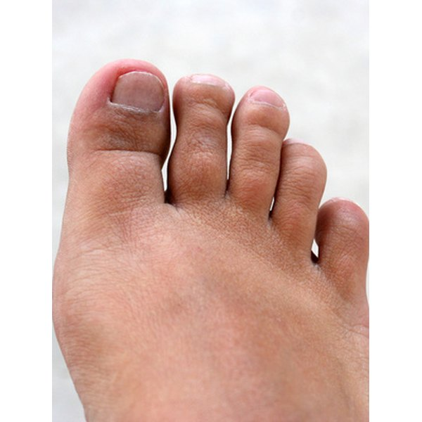 Morton;s Neuroma causes toe pain and burning.