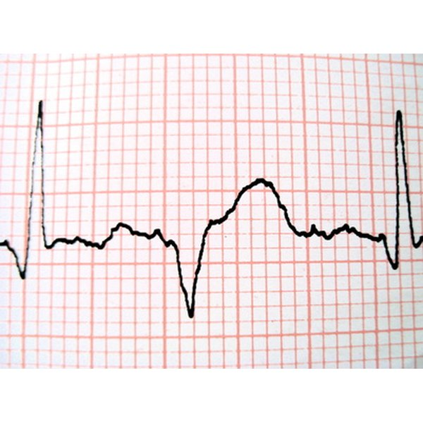 An EKG machine records the electrical activity of the heart for the physician to evaluate.