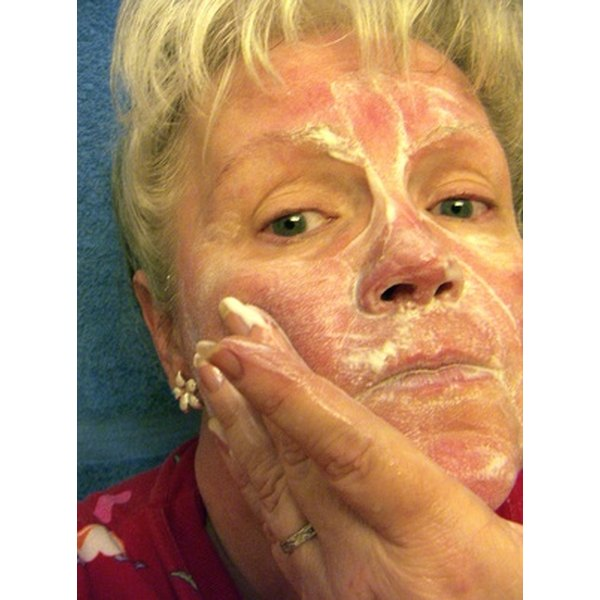 Learn beauty tips to lessen the appearance of rosacea