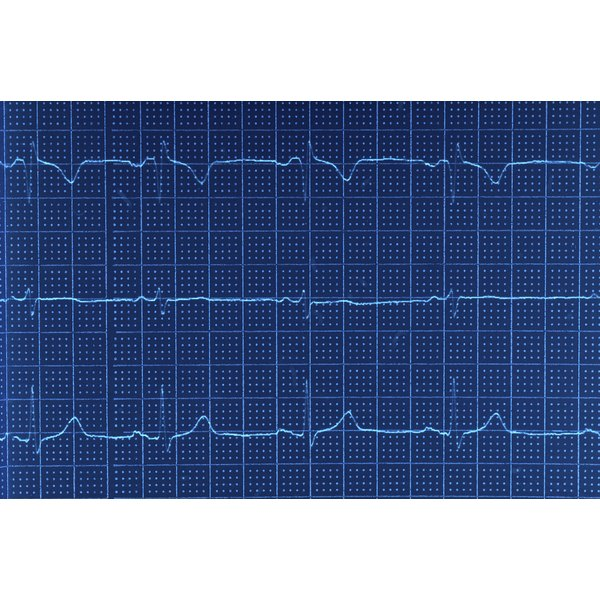 An EKG measures the heart's electrical activity.