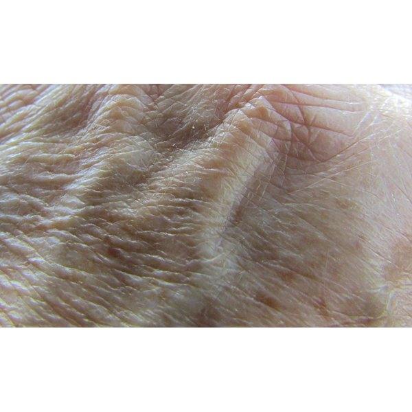 Age spots on skin.