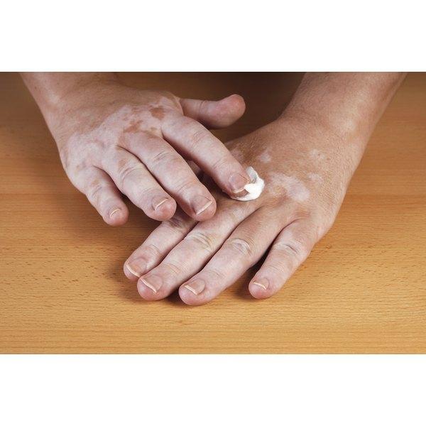 A man with vitiligo on his hands.