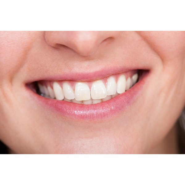 A woman with white teeth is smiling.