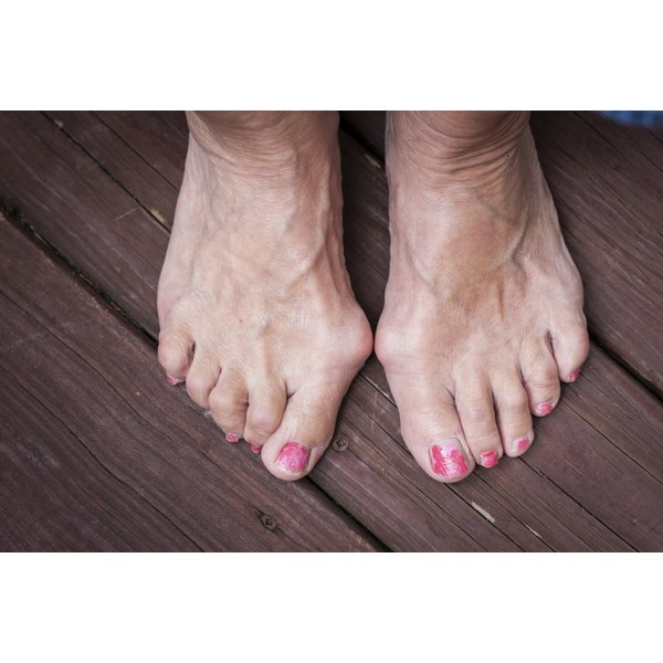 Close-up of woman's feet with two touching bunions.
