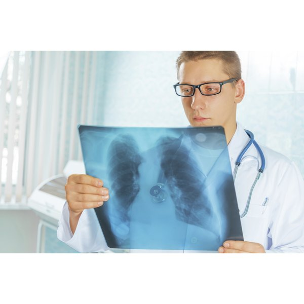 A doctor is examining a scan of someone's lungs.