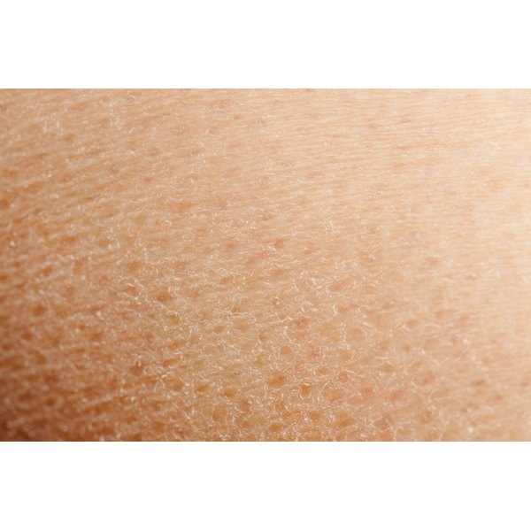 Close up of dry skin.