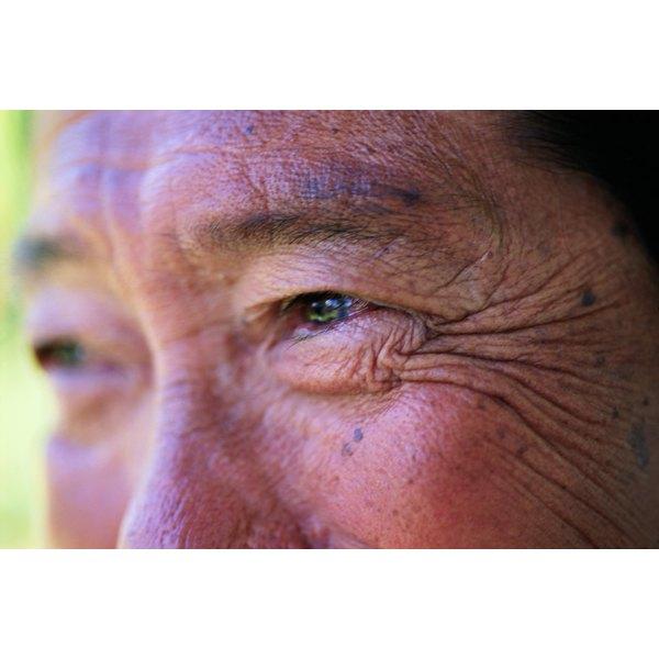 A man has eye wrinkles.