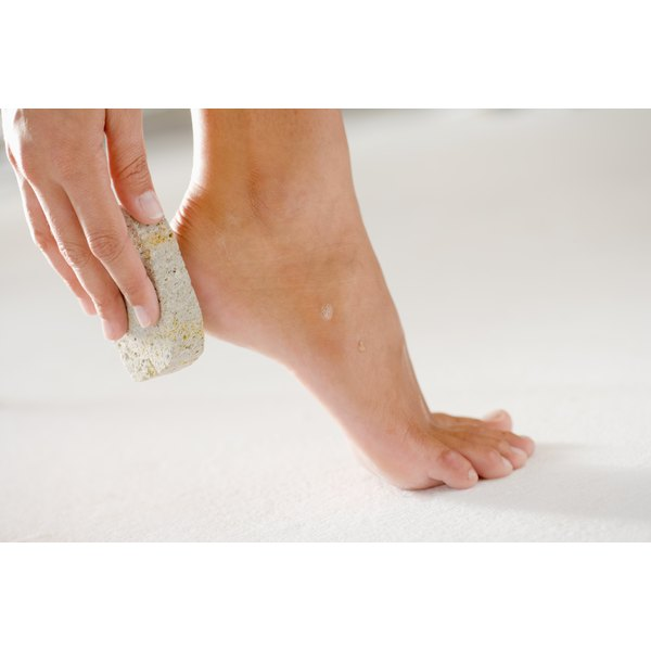 A woman using a pumice stone on the heel of her foot.