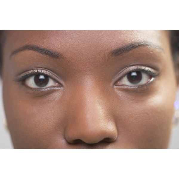 African American skin is more susceptible to dark under eye circles due to increased melanin production.