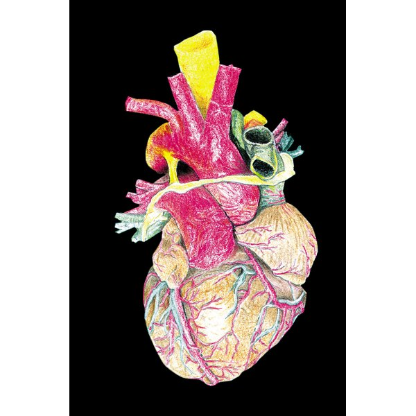 Atherosclerosis is an inflammatory process that can damage major heart arteries.