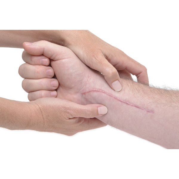 A wrist with a scar on it being held by someone else's hands.