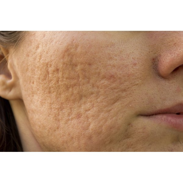 A dermatologist can help reduce redness from embarrassing rosacea flare-ups.