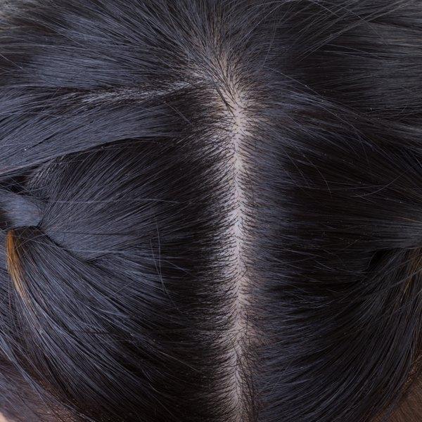 Scalp area on a woman's head.
