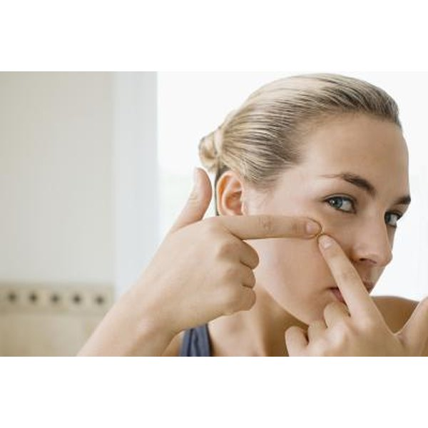 how to bring pimples to the surface