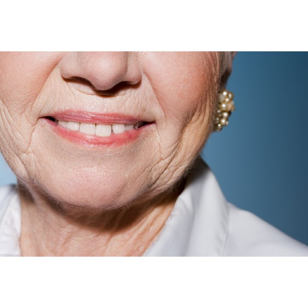 Aging and UV exposure cause deep facial wrinkles.
