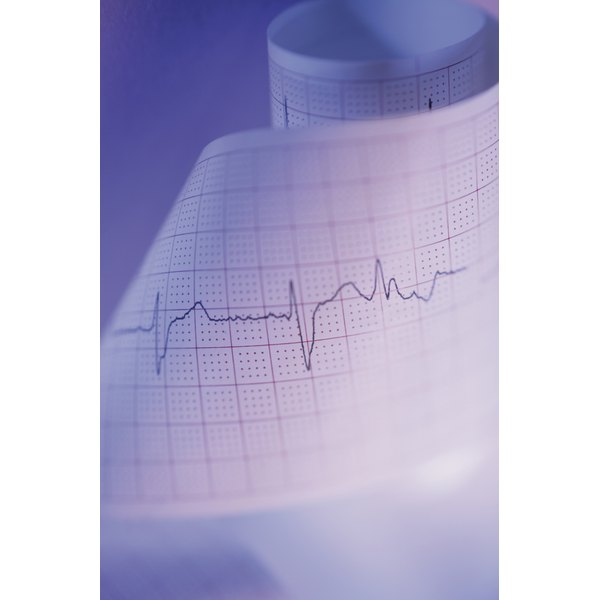 An EKG measures the electrical conduction of the heart.