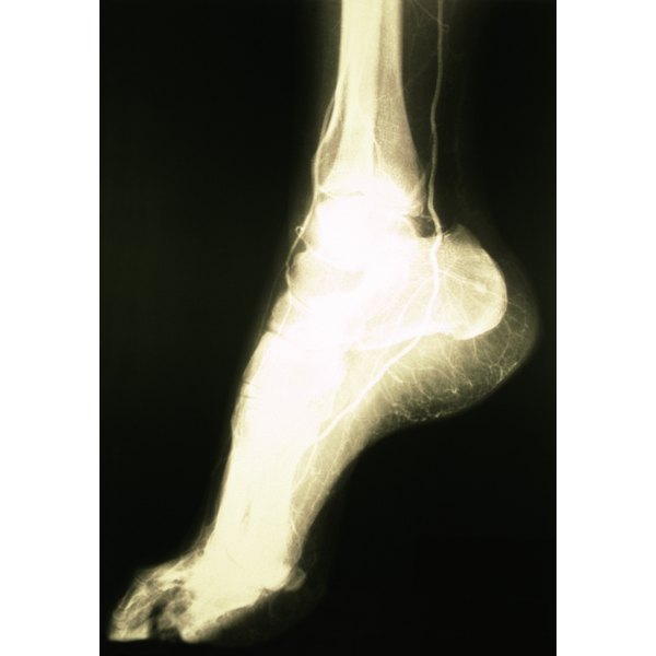 The bones of the foot are known as