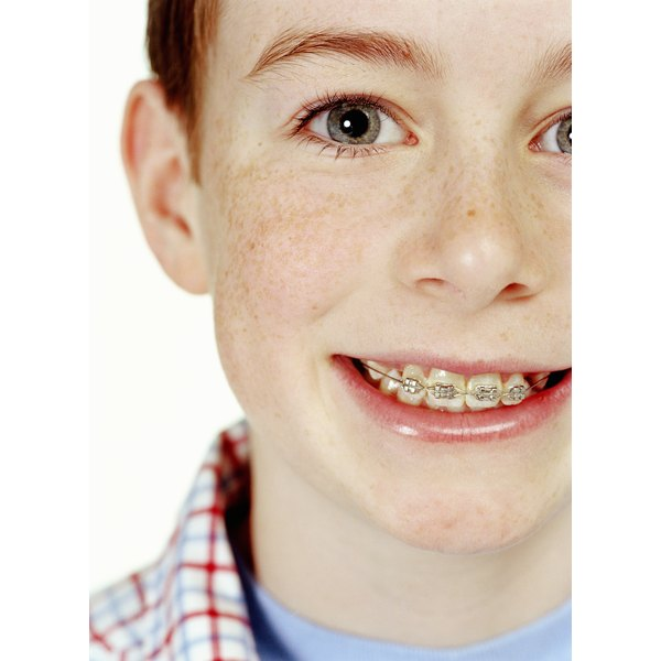 Dental hygiene can be challenging with braces.