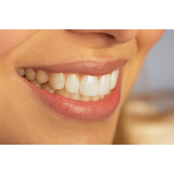 Are There Foods That Whiten Teeth?