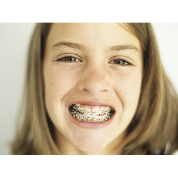 Having your braces removed signifies the end of months or years of orthodontic work.