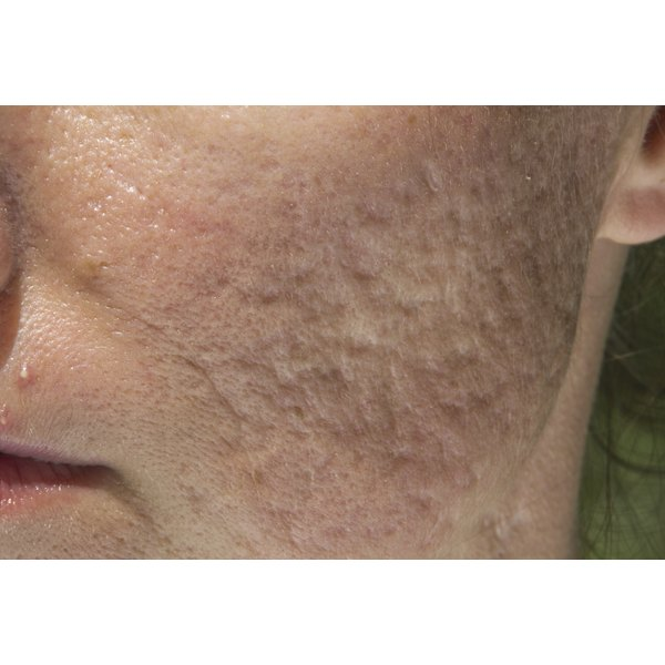 A close-up of a man's cheek with acne scarring.