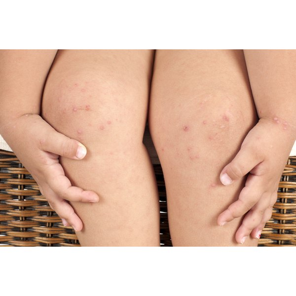 Girl with folliculitis on her knees, legs, and wrists.