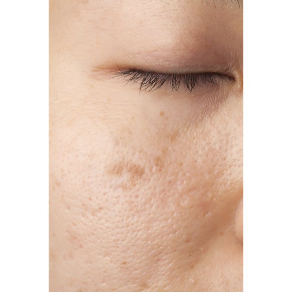 Facial skin with brown spots from sun damage.