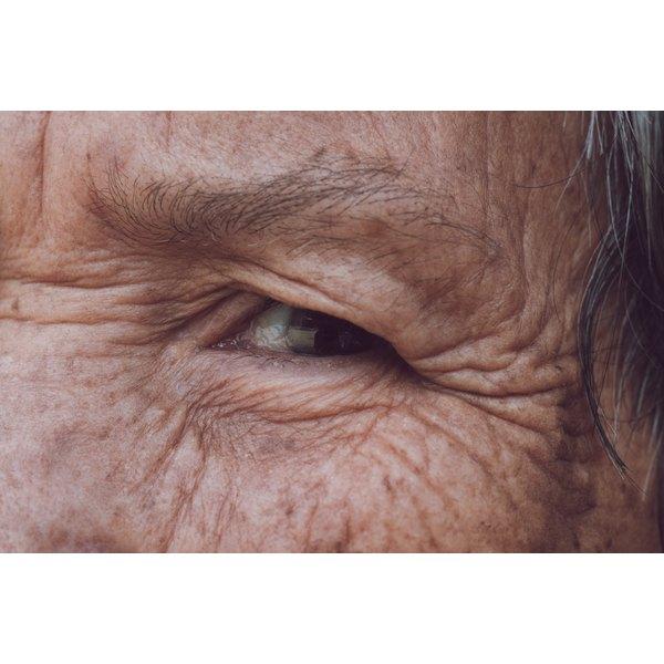 Apply a sunscreen to elderly skin.