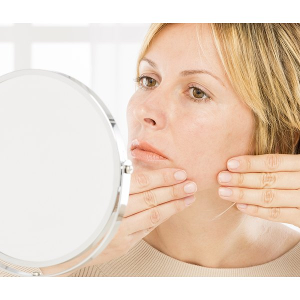 Your skin needs gentler acne treatments as you age.
