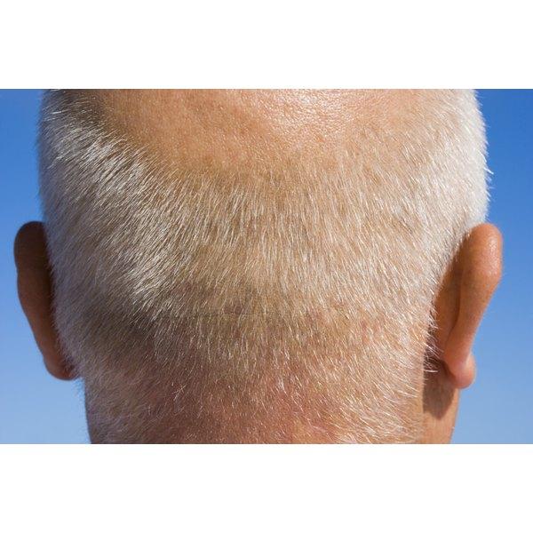 Apple cider vinegar may relieve scalp psoriasis symptoms.